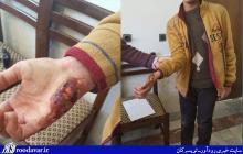 حمله سگ های ولگرد به یک نوجوان سرکانی/معظلی به نام تعدد سگ های ولگرد در یک شهر